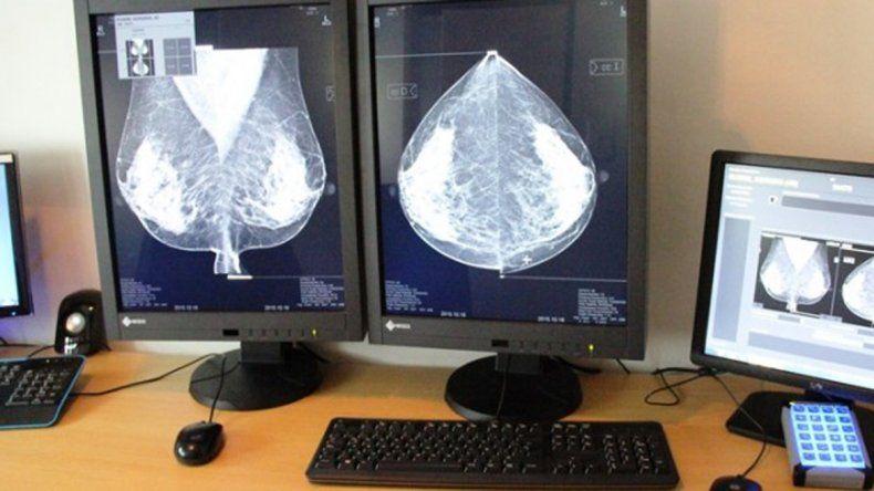 Deben recurrir las mujeres mayores de 50 años que no se realizaron los estudios o ya pasó un año desde el último y las que tengan antecedentes familiares de cáncer de mama