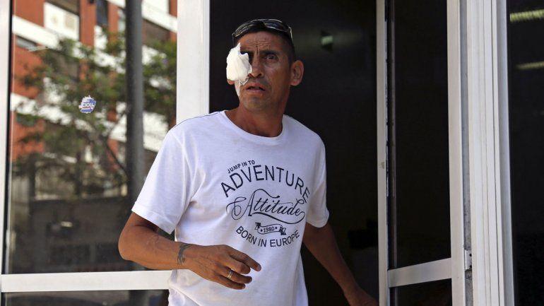 Doce heridos por pirotecnia fueron atendidos en el Hospital del Quemado