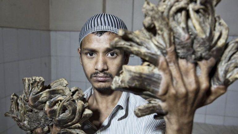 Abul Bajandra entrará hoy al quirófano de un hospital de Dacca. El Estado pagará su tratamiento.