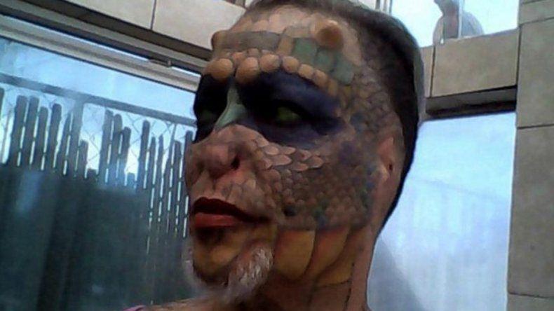 Dos de las imágenes de la mujer que modificó su rostro drásticamente.