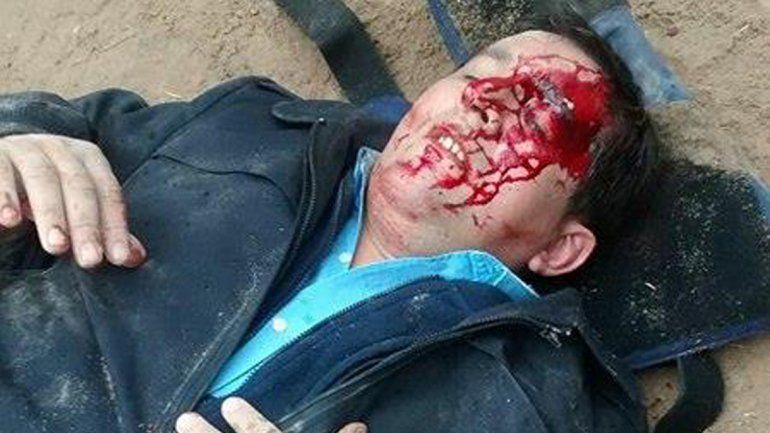 El subcomisario Flavio González fue atacado por un delincuente que le pegó con un fierro en la cabeza.