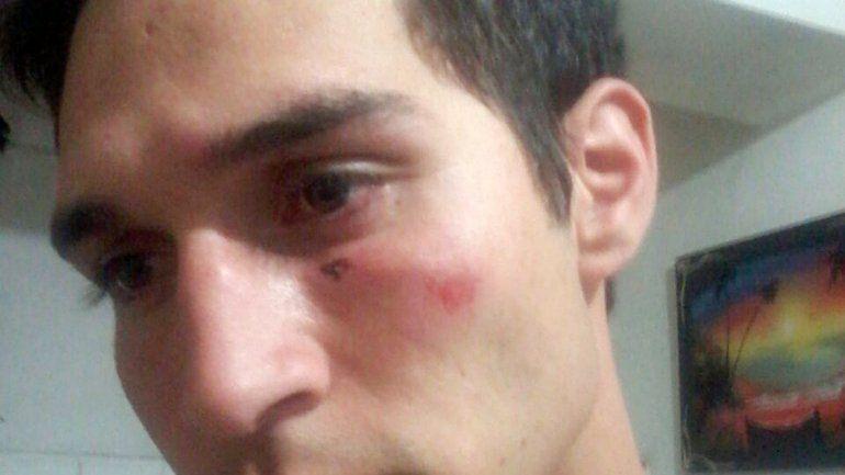 El joven mostró las marcas que le quedaron en el cuerpo y la cara después de la pelea familiar y la intervención de los policías de la Comisaría 41ª.