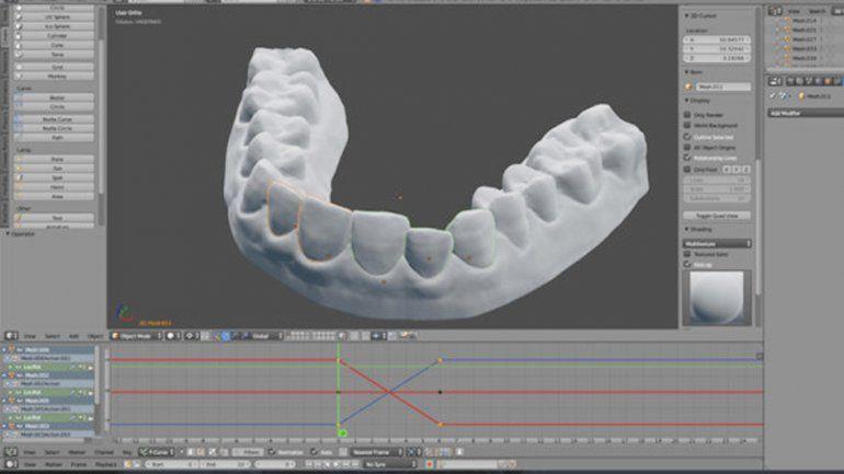 El caso se dio a partir de un experto en 3D que quería mejorar su sonrisa.