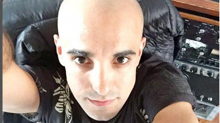 El nuevo Abel Pintos: una postal de su cabeza rapada que subió a su cuenta de Instagram