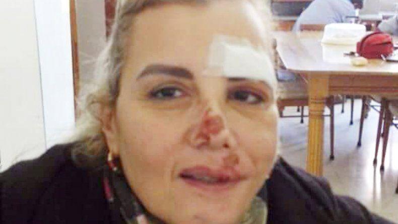 Sandra Biló con las marcas por la golpiza que le dieron los ladrones.