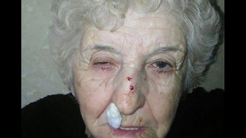 Lidia Tapia fue asaltada y la policía le pidió un análisis vaginal y anal.
