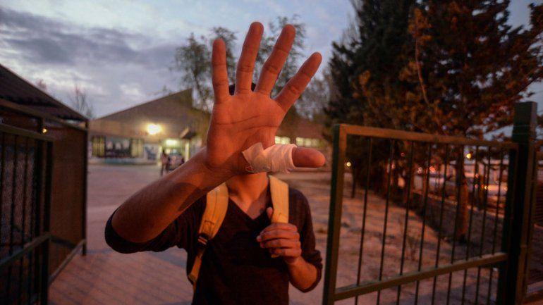 El alumno herido en la mano tras la discusión dentro de un aula del CPEM 25. La Comisaría 4ª tomó intervención.