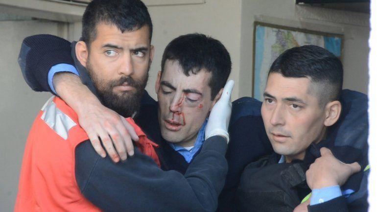 Desde la clínica aseguran que el policía tiene comprometido el ojo izquierdo