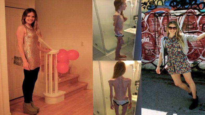 La joven sufrió una anorexia nerviosa que casi termina con su vida.