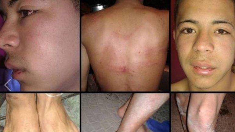 Los efectivos secuestraron y torturaron a dos chicos de la villa Zavaleta.
