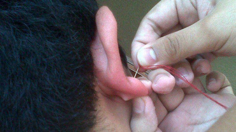 Un pibe de 14 años se puso un piercing en la oreja y a la semana falleció.