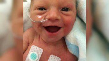 la imagen de esta bebe que es pura sonrisa dio vuelta la web