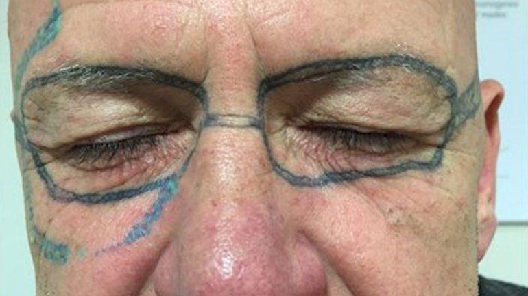 Amaneció con lentes tatuados luego de una noche loca