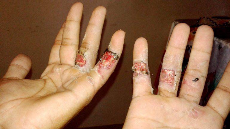 Las manos de Tomás luego de recibir el injerto en el Castro Rendón.