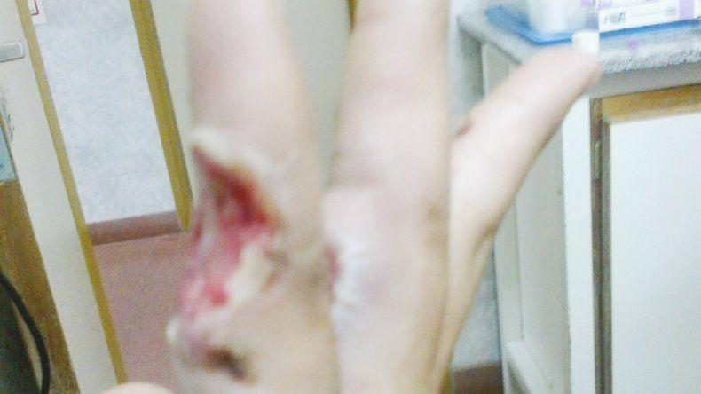 Las imágenes son elocuentes. El dedo de Tomás destrozado y las manos dañadas.