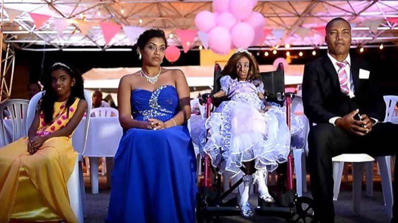 Una niña con progeria supera la adversidad y celebra sus 15 años
