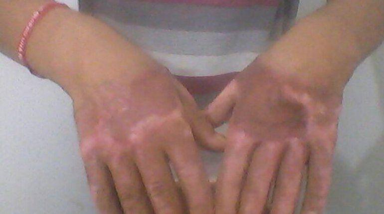 Méndez está detenido en la U11 hace un mes. En las manos recibió injertos que nunca fueron revisados por los médicos.