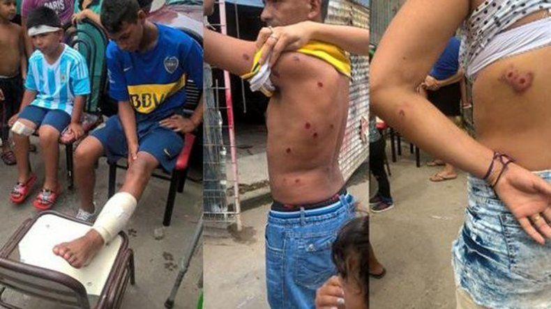 Uno de los jóvenes atacados por gendarmes en la Villa 1-11-14.