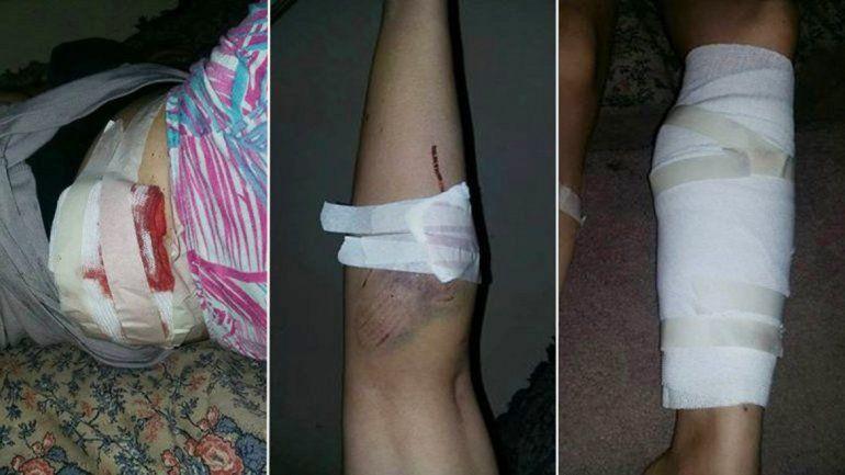 La víctima subió fotos de las heridas a la red social Facebook.