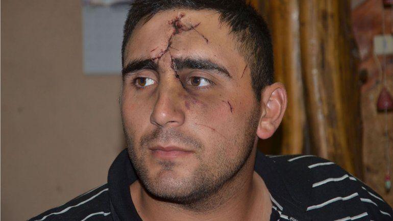 Le desfiguraron la cara por hacerse policía