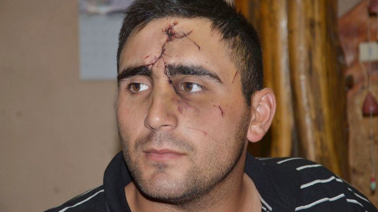 El agente Dante Hermosilla fue agredido por haberse hecho policía.