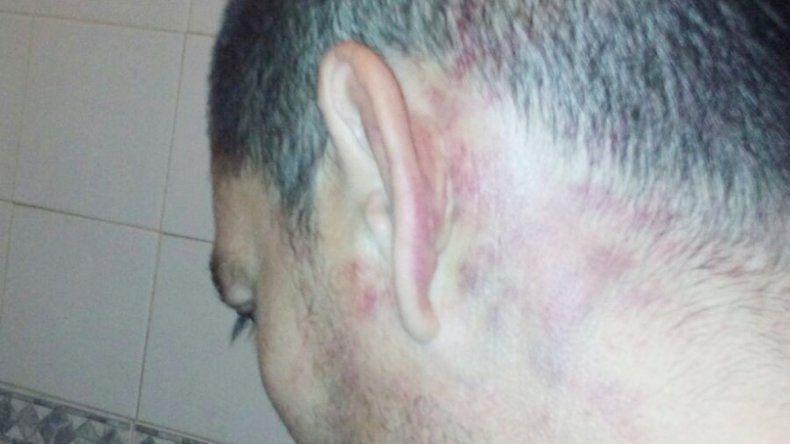 Las evidencias de la brutal golpiza que sufrió Diego.