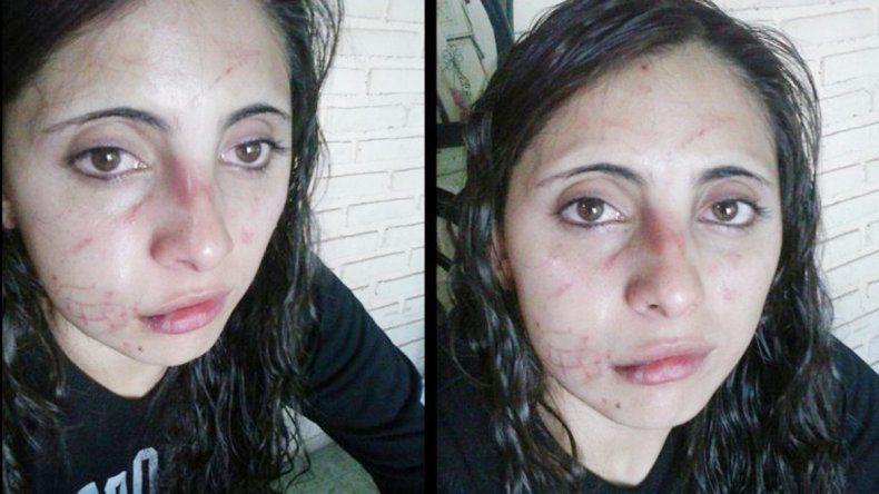 Fabiana publicó las fotos de su cara para denunciar la brutal agresión.