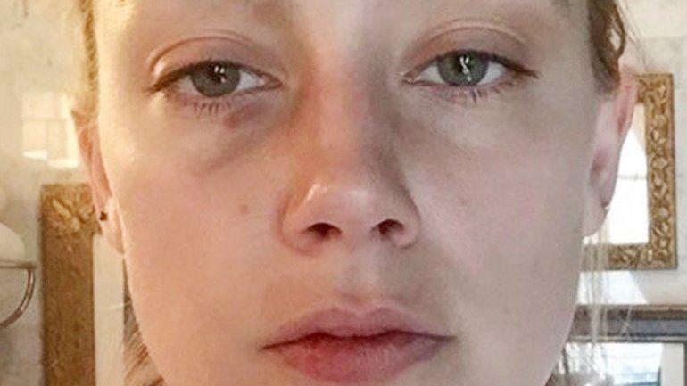 Las fotografías de las lesiones las tomó una amiga de la actriz