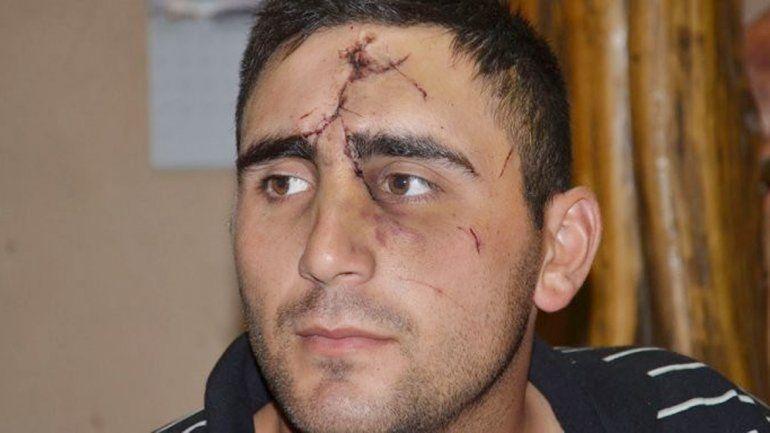 El rostro de Hermosilla después del brutal ataque en el bar.