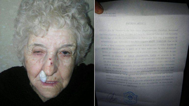 Golpean a una abuela para robarle la cartera en San Juan y la policía le pide examen ginecológico.