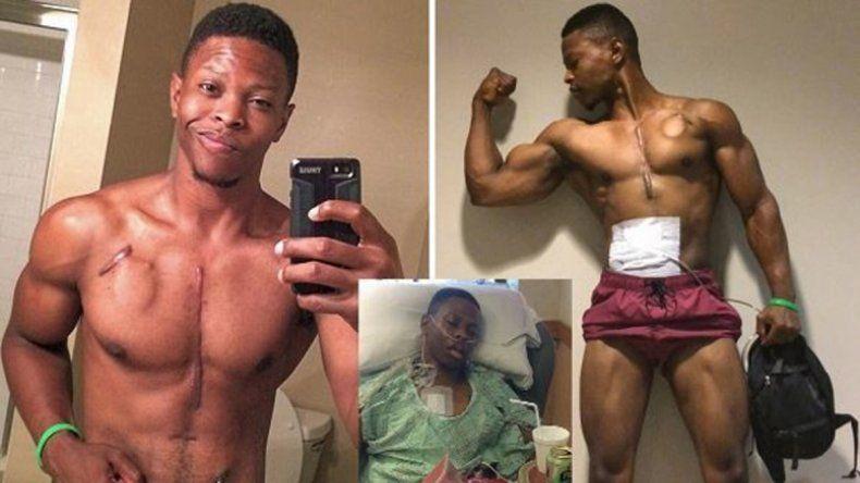 Andrew Jones tiene 27 años y vive gracias a una mochila que bombea la sangre. Está esperando un trasplante.