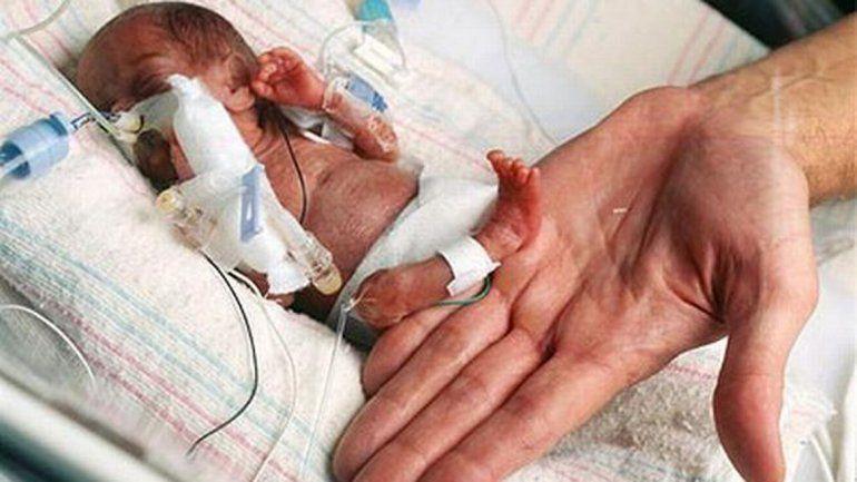 Cumplió nueve meses la bebé más chiquita del mundo