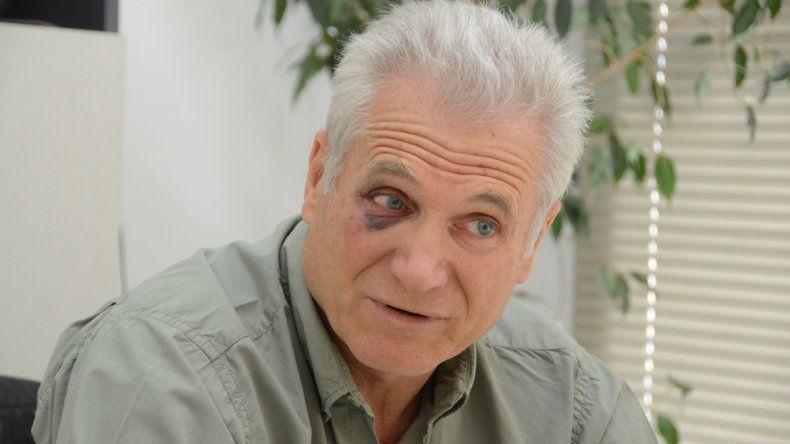 Juan Carlos muestra su ojo golpeado por los delincuentes que irrumpieron en su comercio