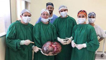 le extirparon un tumor de 15 kilos a una mujer