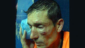 brutal agresion a un arbitro durante un partido: jugadores e hinchas casi lo linchan en la cancha