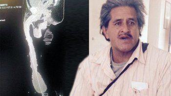 Roberto Cabrera posee un pene de 48 centímetros. No quiere operarse.