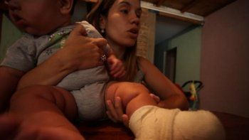 un bebe sufrio quemaduras tras la explosion de un celular