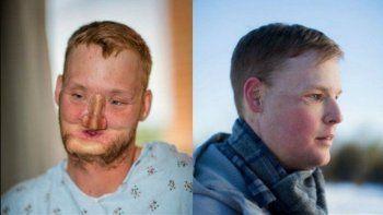 El nuevo rostro de Sandness. El donante también tenía 21 y se suicidó.