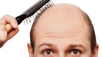 Los resultados de esta investigación inglesa servirán para encontrar una alternativa en la búsqueda de solucionar la pérdida de cabello severa.