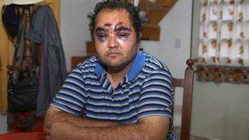 Juan Marcelo Garrido padece retraso madurativo. Quedó totalmente desfigurado tras la golpiza que le dieron en la plaza Soldado Ávila.