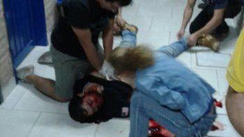 Policía asesinó de un tiro a un dirigente opositor