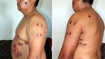 Participó de una riña y recibió 29 perdigones de goma