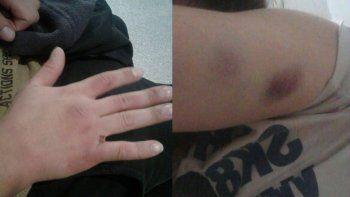 dos jovenes denunciaron que sufrieron una golpiza de parte de policias en plottier