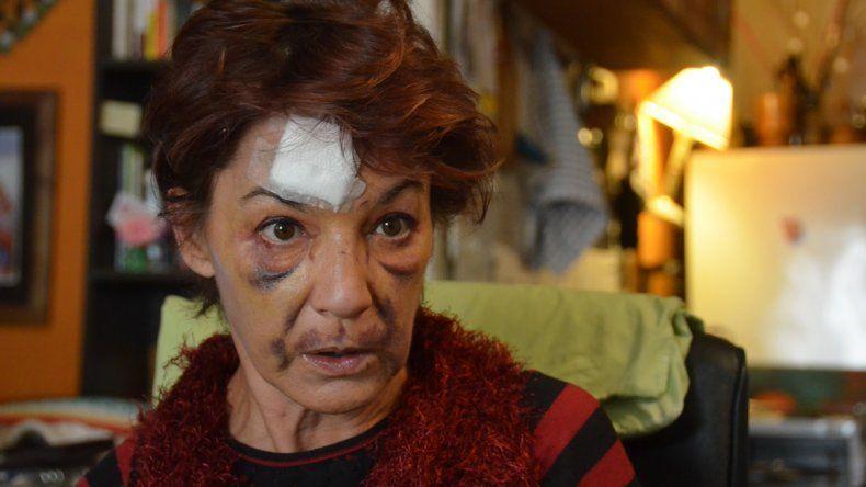 El rostro de Diana es la prueba de la violencia con la que actuó el motochorro.