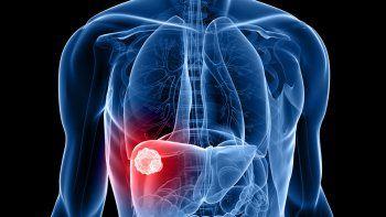 El medicamento, que se llama nivolumab, fue probado exitosamente en tratamiento de tumores en la piel, pulmones y riñones. En el hígado ya hubo casos de personas que lograron eliminarlo por completo.