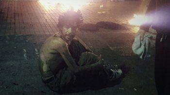 La víctima, de unos 35 años, fue trasladada a un hospital donde lo curaron. Le ofrecieron dormir ahí pero quiso irse.