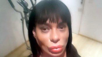 Oriana Junco denunció que fue golpeada por un policía