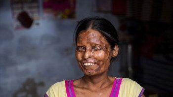 Madre e hija fueron atacadas hace diez años en la India.
