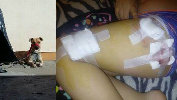 otro nene fue atacado por un perro en las calles de zapala