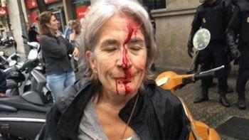 Más de 760 heridos por la represión policial